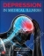 Depression in Medical Illness Arthur Barsky, David Silbersweig 9780071819084